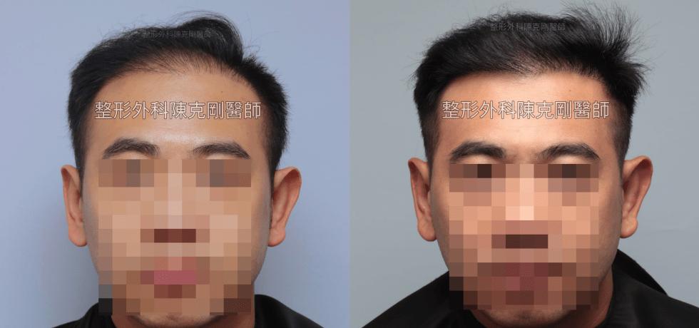 FUT割頭皮植髮失敗FUE微創植髮重修手術後半年比較