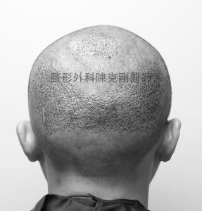 陳克剛醫師桃園巨量植髮案例分享植髮手術中後腦