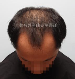陳克剛醫師桃園巨量植髮案例分享植髮手術前低頭