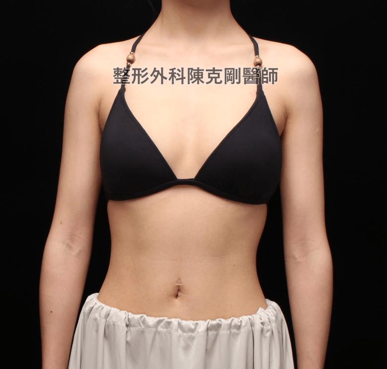 陳克剛醫師內視鏡魔滴隆乳案例術前內衣正面