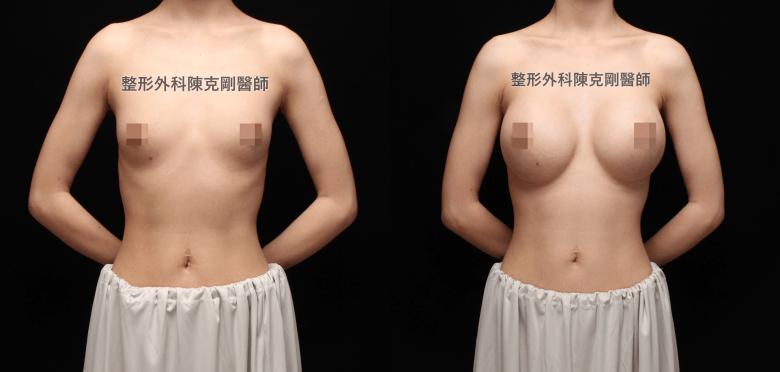 陳克剛醫師魔滴隆乳案例術後三個月正面比較