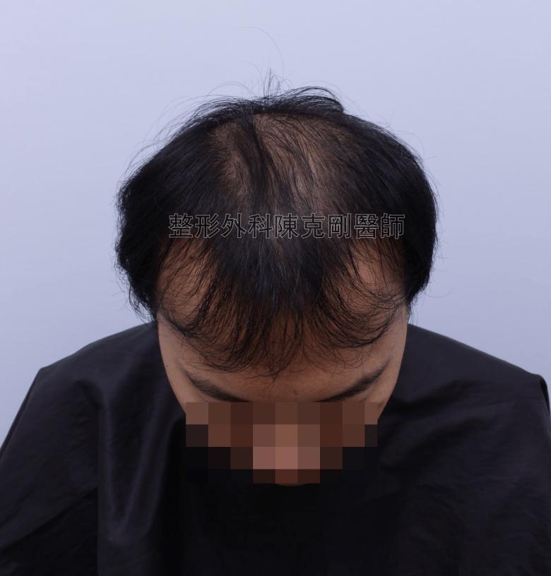 陳克剛醫師台中巨量植髮治療頭頂稀疏案例分享 植髮手術前低頭