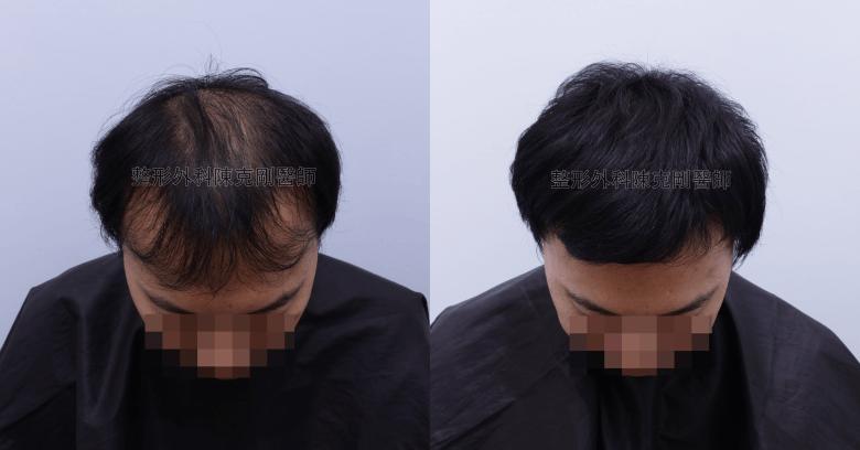陳克剛醫師台中巨量植髮治療頭頂稀疏案例分享 植髮手術後半年低頭比較