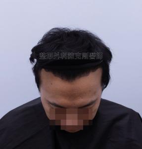 陳克剛醫師台中巨量植髮治療頭頂稀疏案例分享 植髮手術後半年低頭髮線