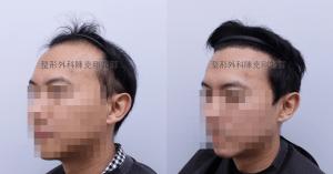 陳克剛醫師台中巨量植髮治療頭頂稀疏案例分享 植髮手術後半年左側髮線比較