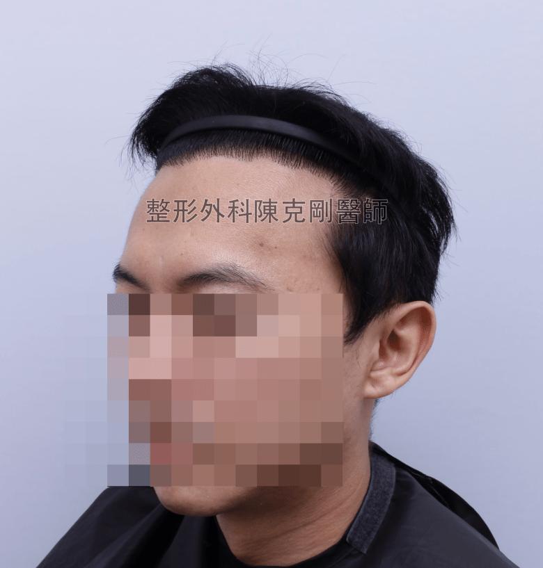 陳克剛醫師台中巨量植髮治療頭頂稀疏案例分享 植髮手術後半年左側髮線