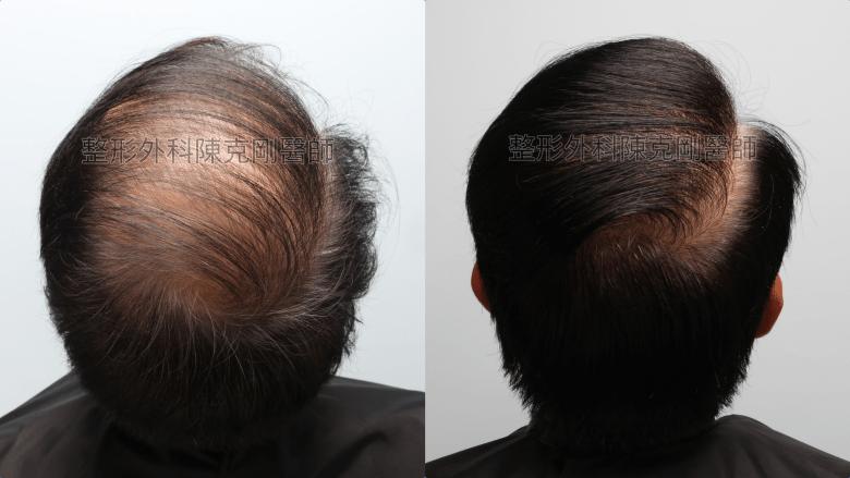 陳克剛醫師頭頂稀疏巨量植髮案例 FUE巨量植髮手術後一年仰頭比較