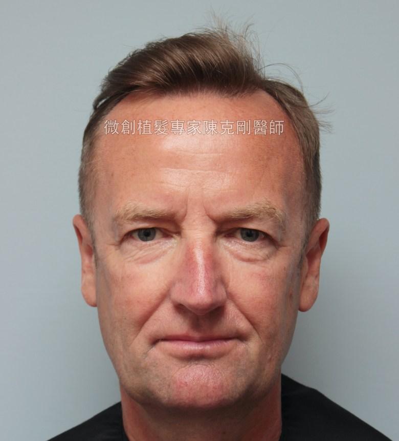 外國人植髮 微創植髮專家陳克剛醫師案例分享 植髮手術前正面