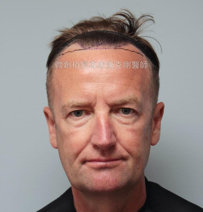外國人植髮 微創植髮專家陳克剛醫師案例分享 植髮手術畫線JPG