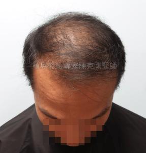 植髮機器人失敗二次植髮重修 寇約翰植髮手術前低頭