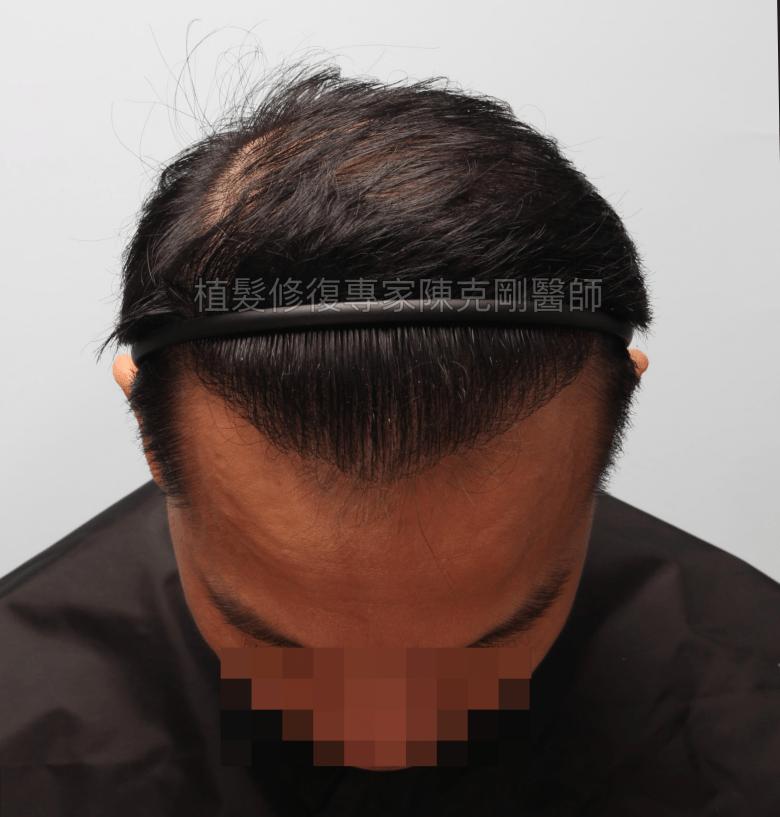 植髮機器人失敗二次植髮重修 寇約翰植髮手術後一年低頭髮線