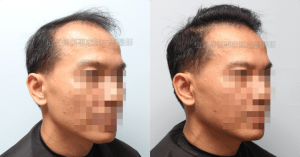 植髮機器人失敗二次植髮重修 寇約翰植髮手術後一年右側比較