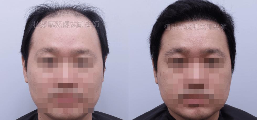 陳克剛醫師雄性禿第五期FUE巨量植髮案例分享 植髮手術後半年正面比較