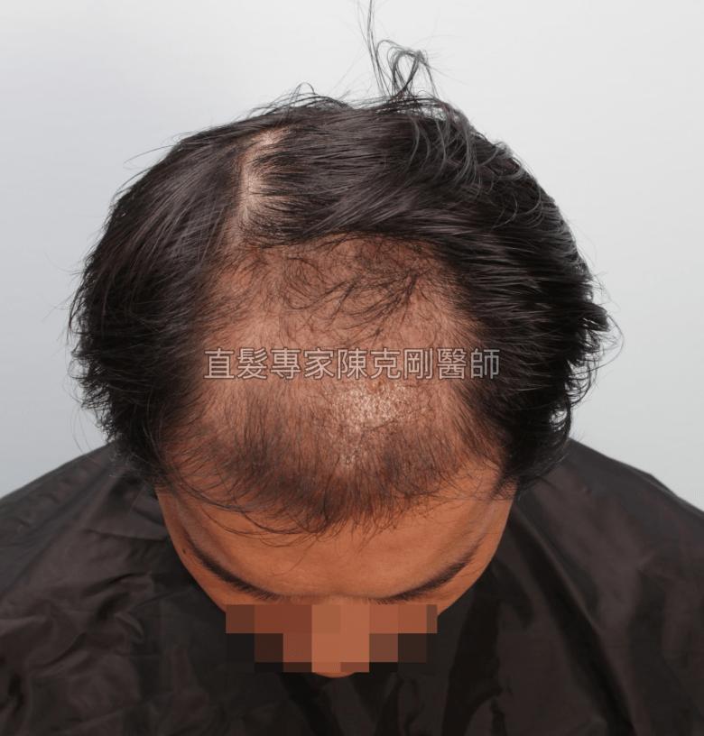 巨量植髮取代髮片 陳克剛植髮案例分享