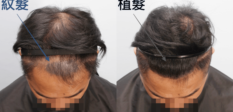 頭皮刺青失敗後植髮