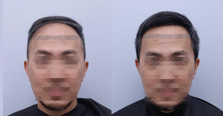 陳克剛醫師 台中前額寇約翰巨量植髮成功案例分享 植髮手術後六個月正面比較