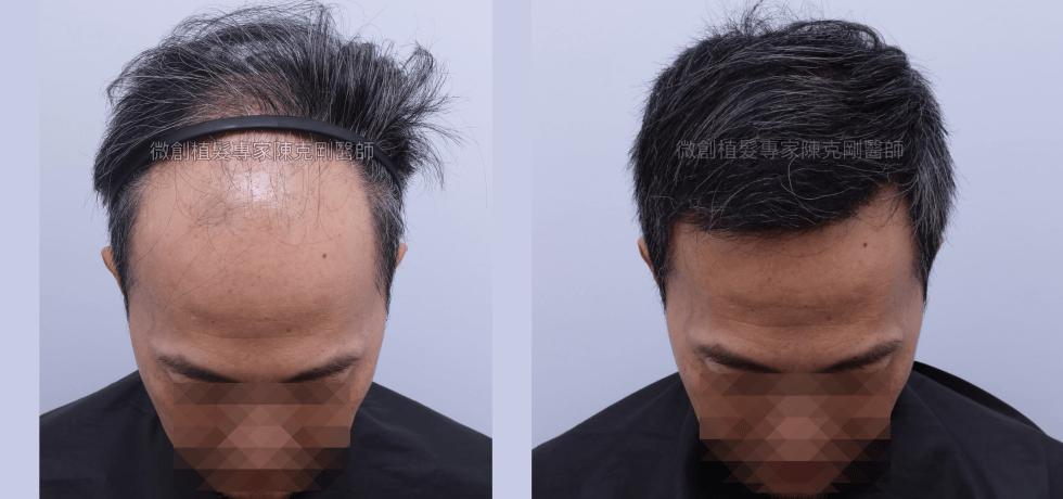 陳克剛醫師 台中前額寇約翰巨量植髮成功案例分享 植髮手術後六個月 低頭比較