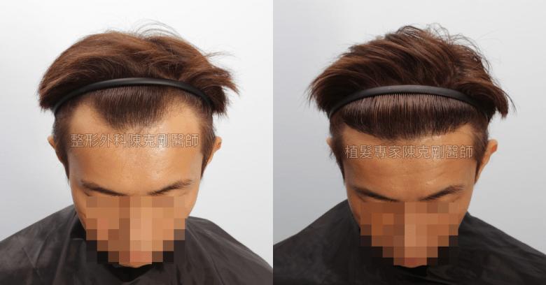 陳克剛醫師 高雄髮際線植髮案例分享 植髮手術後六個月低頭比較