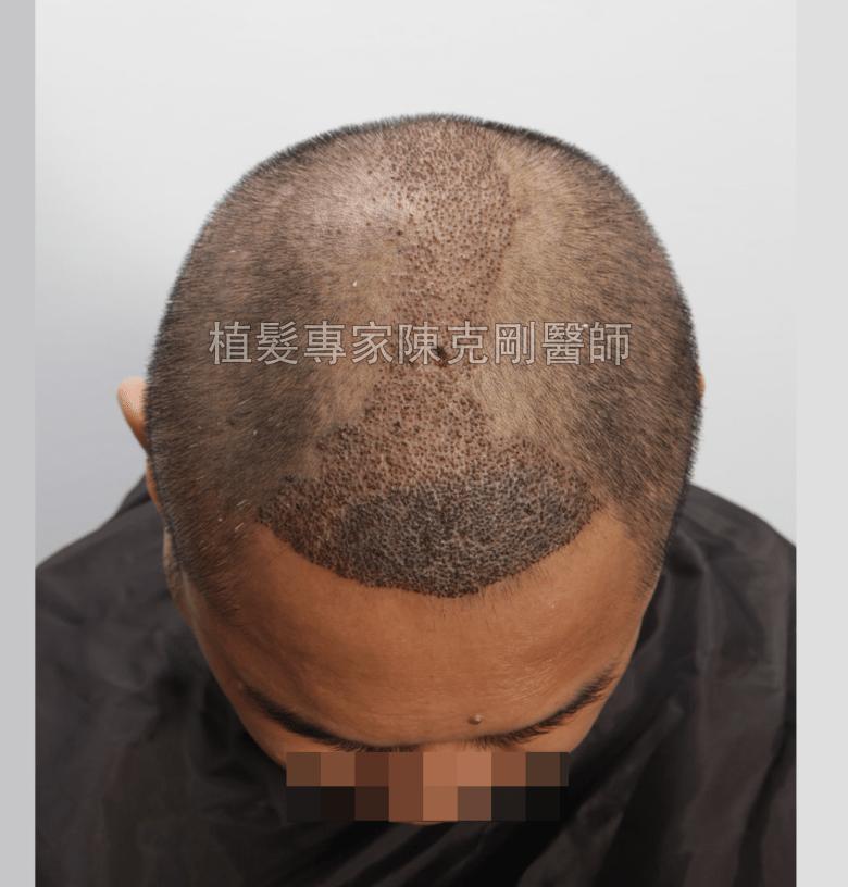 頭皮刺青魔術真髮後植髮 植髮手術後一週低頭