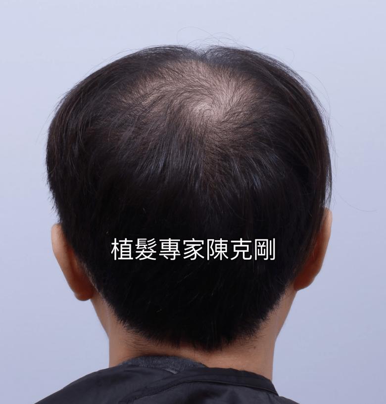 巨量植髮割頭皮的缺點