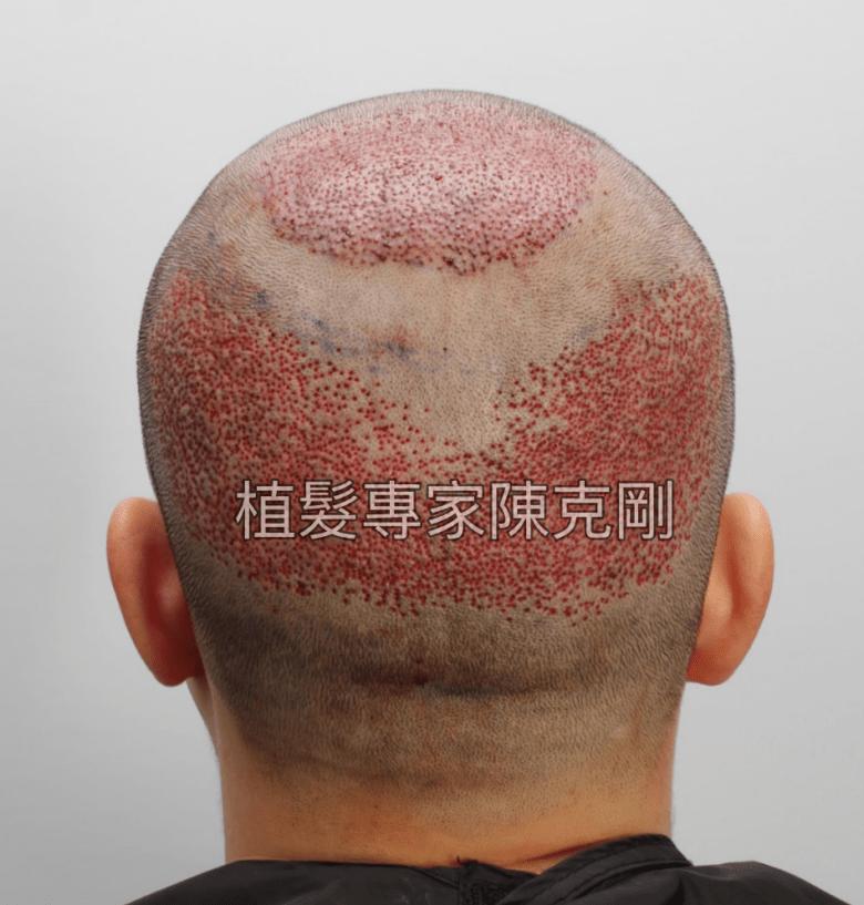台中植髮專家