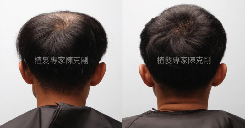 巨量植髮專家陳克剛