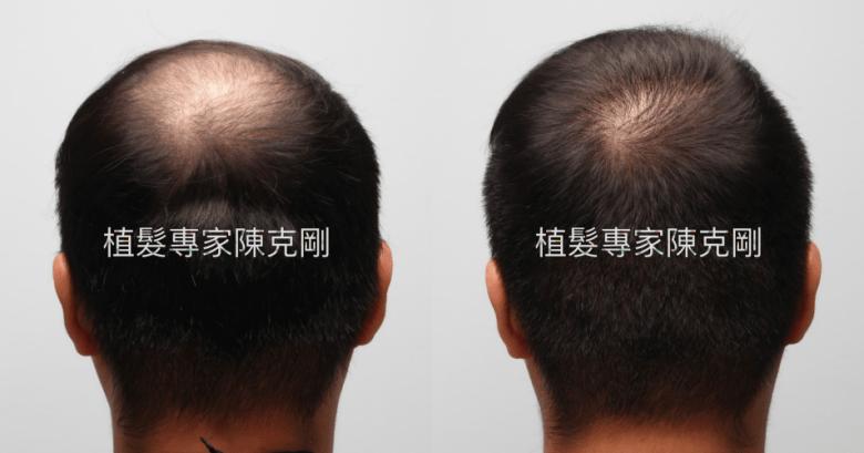 米蘭植髮分享