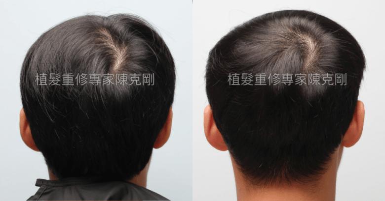 植髮失敗重修案例分享