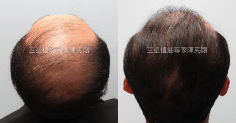 陳克剛植髮案例分享