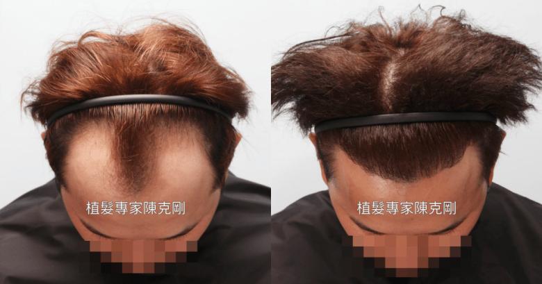 植髮存活率