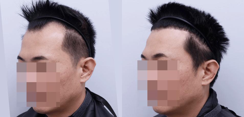 M型禿植髮推薦