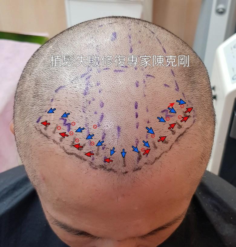 植髮失敗過於稀疏以及髮流錯誤