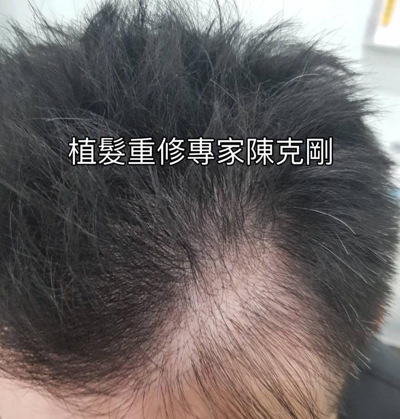 台北植髮推薦