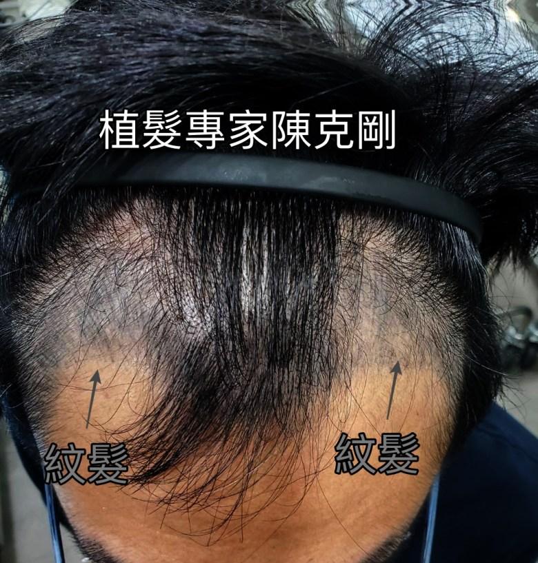 M型禿紋髮失敗