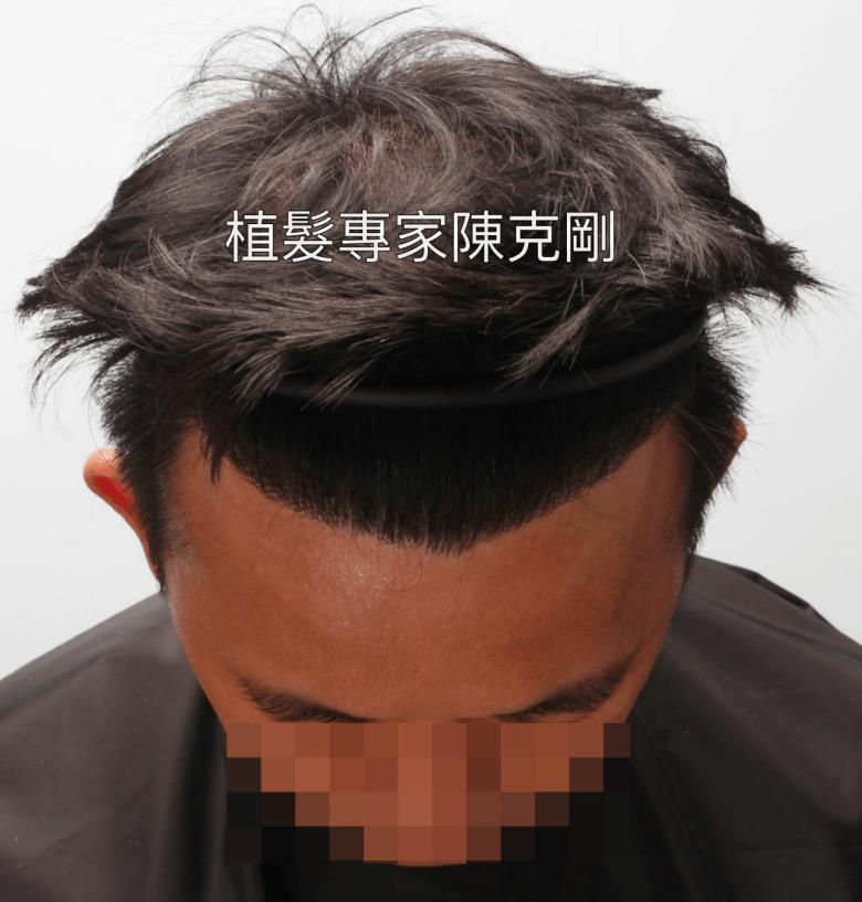 M型禿植髮