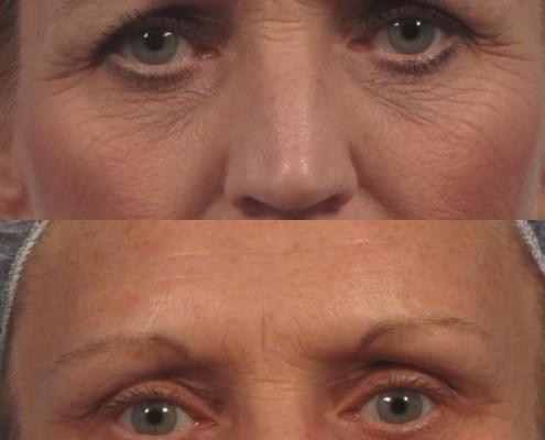 eyebrow surgery ny