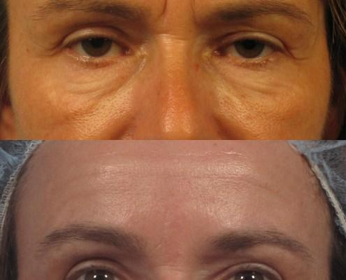 nonsurgical eyelid