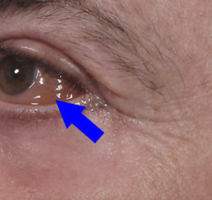 swelling of the conjunctiva – chemosis - brett kotlus m.d., Skeleton