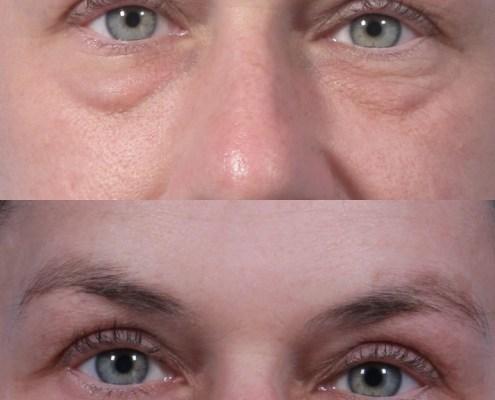 lift kotlus eyelid