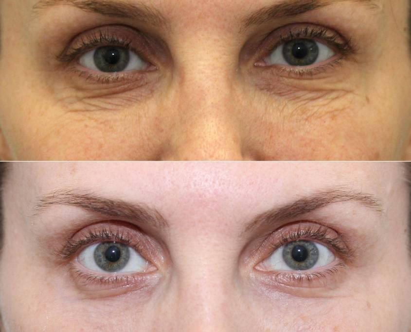 under eye laser