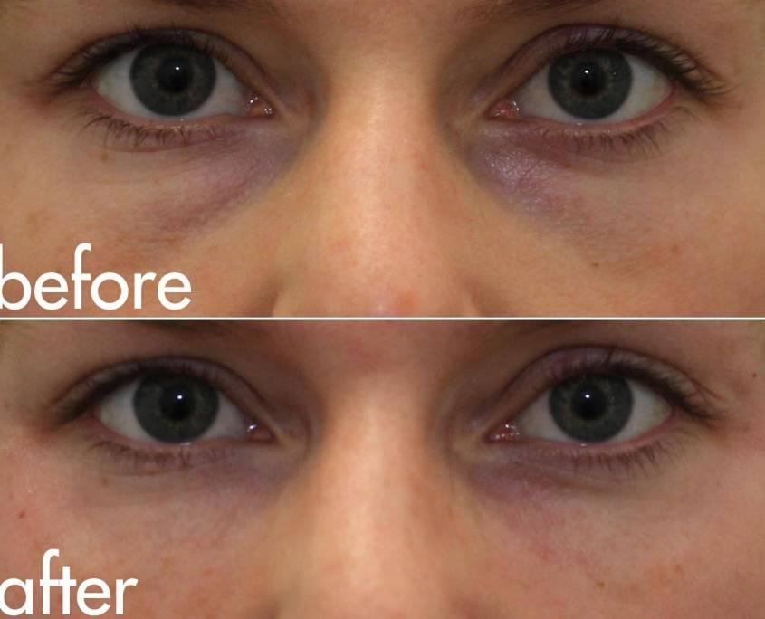 eye bags filler
