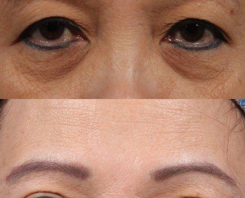 almond-shaped eyes ny