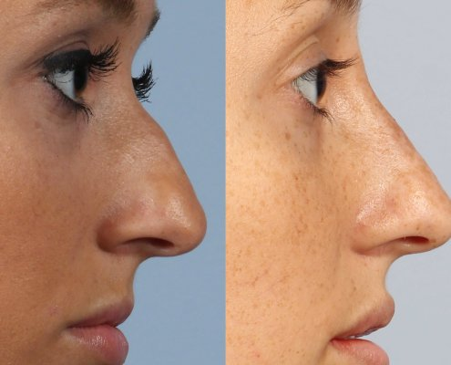 filler for nose bump ny