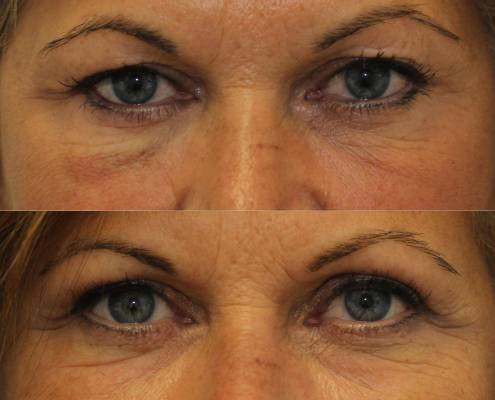 fat grafting eyelid