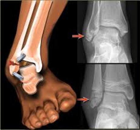 كسور الكاحل Ankle Fractures الدكتور مازن كردية
