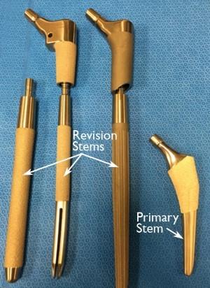 Revision hip implants