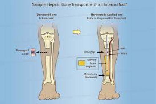 رسم توضيحي لقصبة الساق يُظهر أول خطوتين في نقل العظام باستخدام مسمار داخلي - إزالة العظم التالف ثم تطبيق الأجهزة لتحضير العظم للنقل