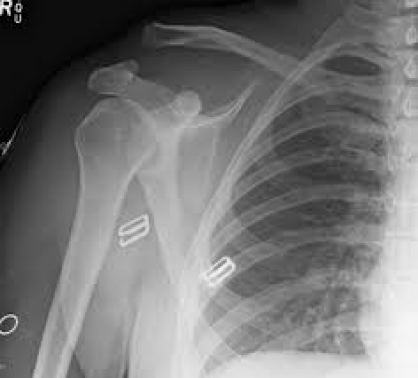 https://upload.orthobullets.com/topic/3047/images/Xray - AP - AC separation_moved.jpg