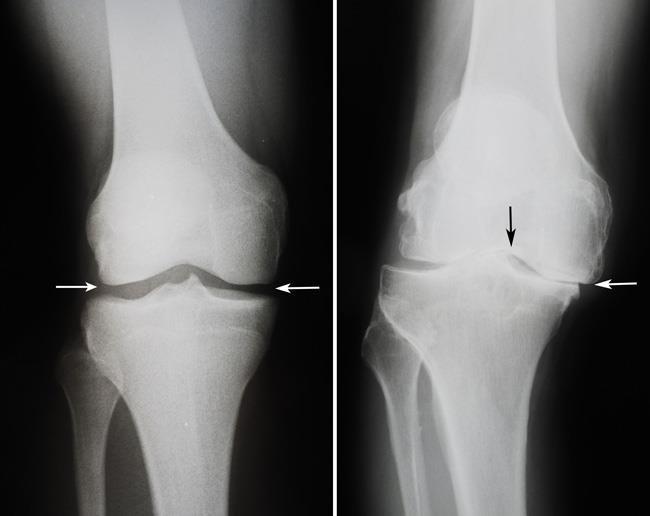 صورة بالأشعة السينية لركبة صحية وركبة مصابة بهشاشة العظام