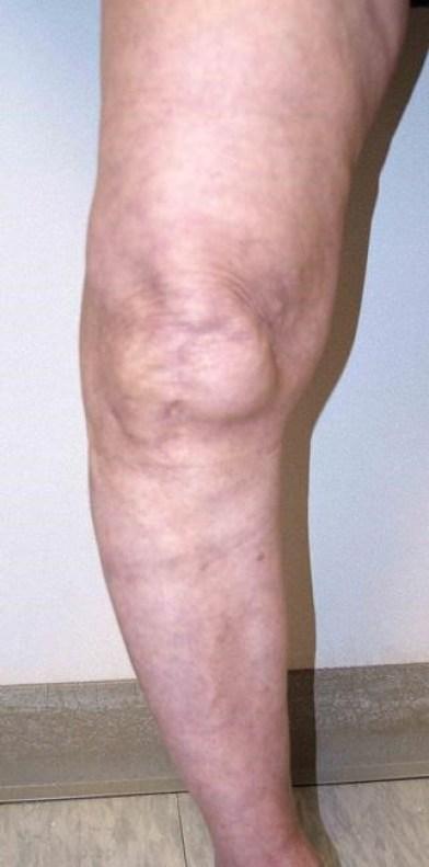 الركبة التي تنحني نتيجة لالتهاب المفاصل الشديد.